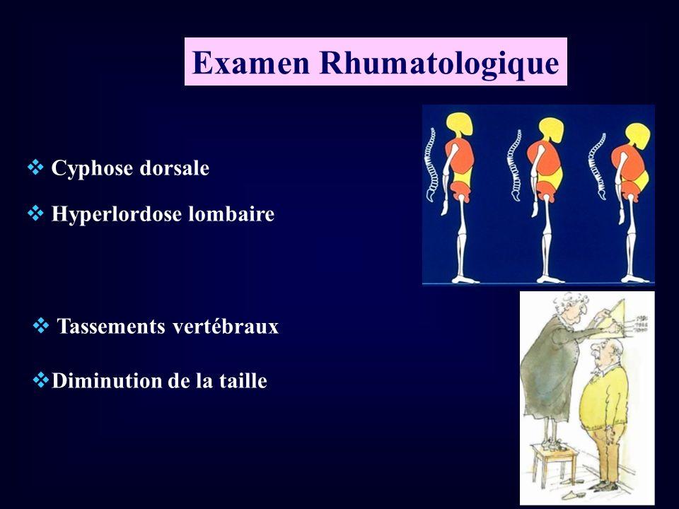 Cyphose dorsale Hyperlordose lombaire Examen Rhumatologique Tassements vertébraux Diminution de la taille
