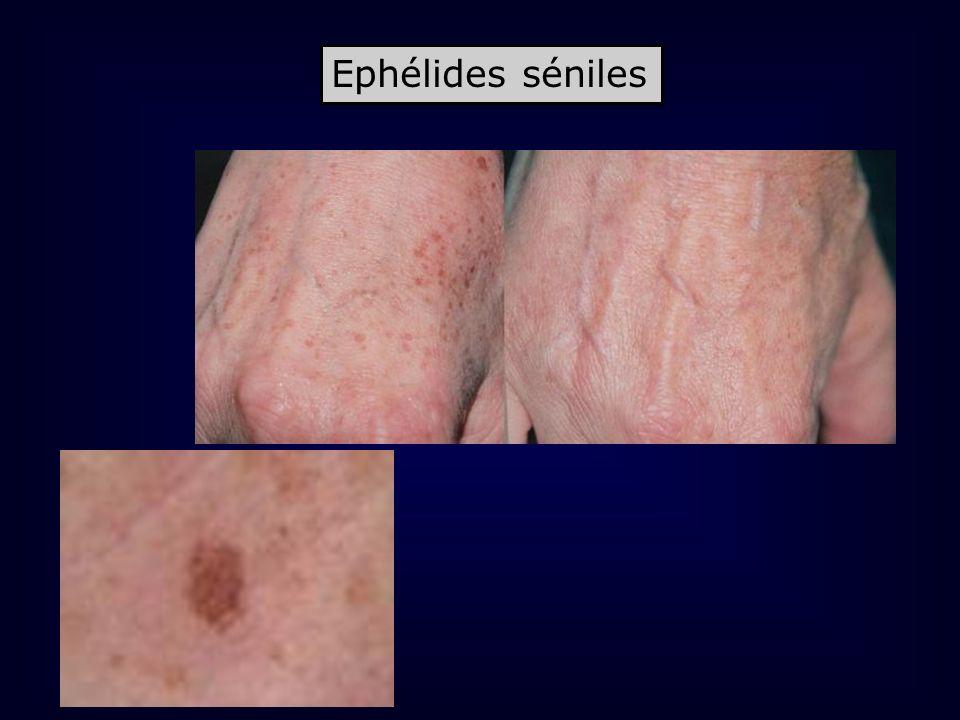 Ephélides séniles