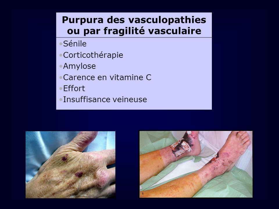 Purpura des vasculopathies ou par fragilité vasculaire Sénile Corticothérapie Amylose Carence en vitamine C Effort Insuffisance veineuse