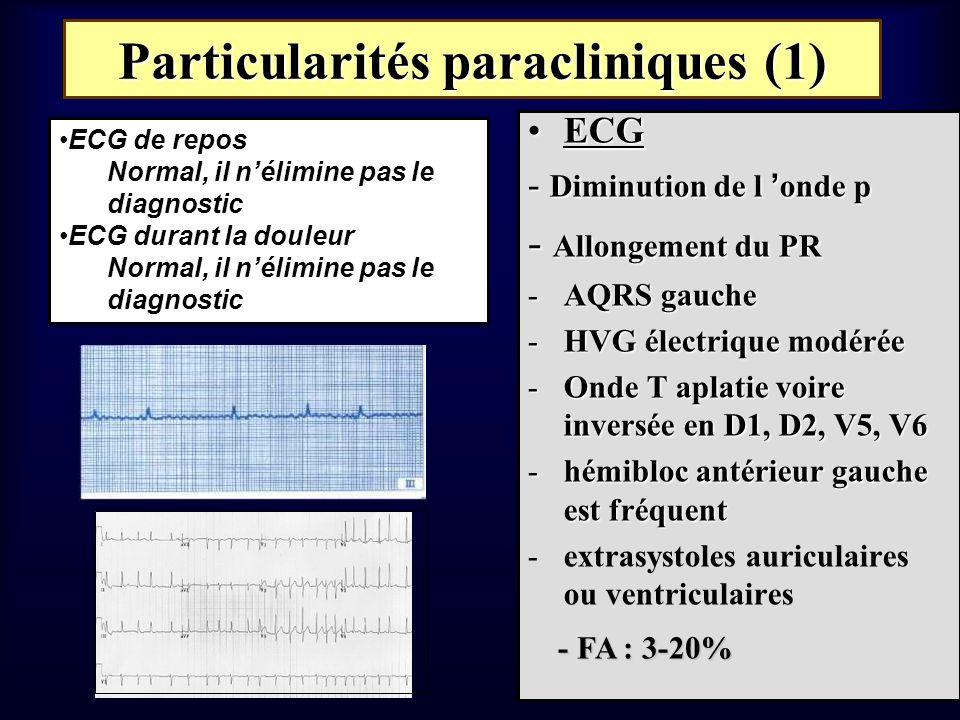 Particularités paracliniques (1) ECGECG - Diminution de l onde p - Allongement du PR -AQRS gauche -HVG électrique modérée -Onde T aplatie voire invers