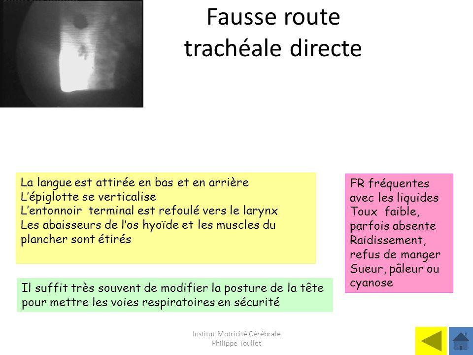 Institut Motricité Cérébrale Philippe Toullet Fausse route trachéale directe La langue est attirée en bas et en arrière Lépiglotte se verticalise Lent