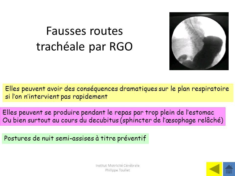 Institut Motricité Cérébrale Philippe Toullet Fausses routes trachéale par RGO Elles peuvent avoir des conséquences dramatiques sur le plan respiratoi