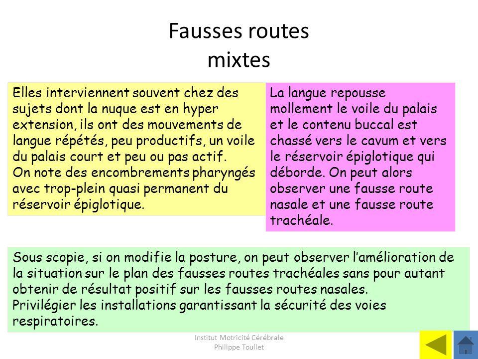 Institut Motricité Cérébrale Philippe Toullet Fausses routes mixtes Elles interviennent souvent chez des sujets dont la nuque est en hyper extension,