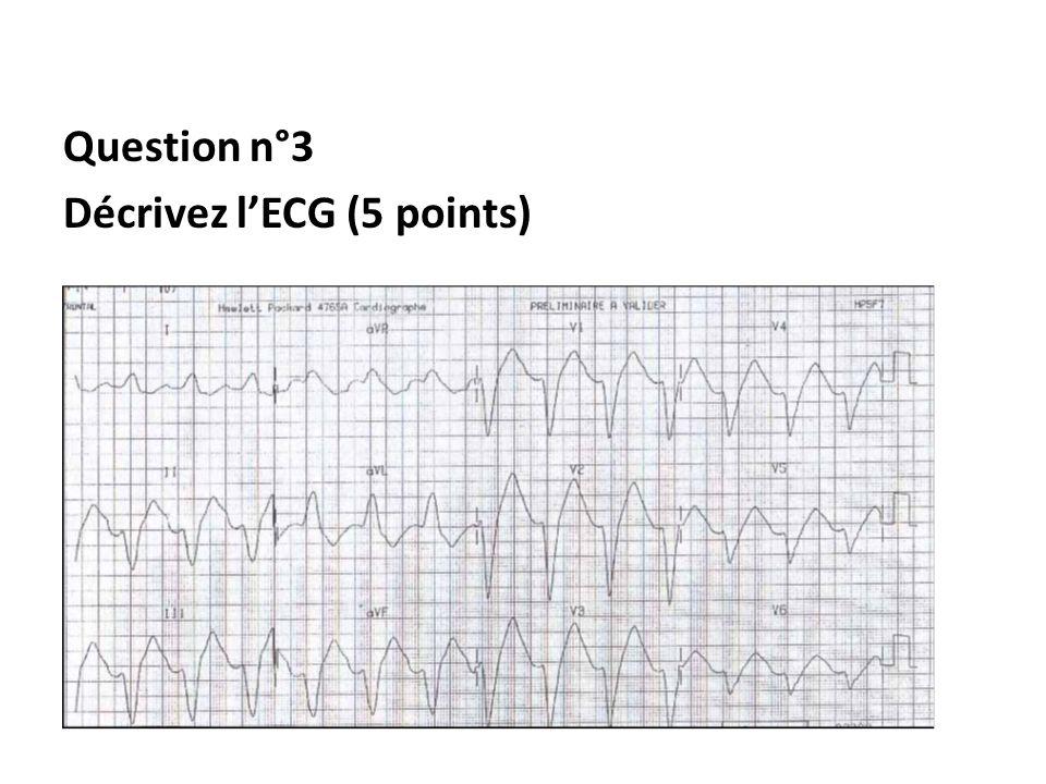 Rythme régulier Onde P non visible Elargissement monstrueux des QRS Conclusion : Bloc de conduction intraventriculaire (3) secondaire à leffet stabilisant de membrane (2) du propranolol et de lanafranil