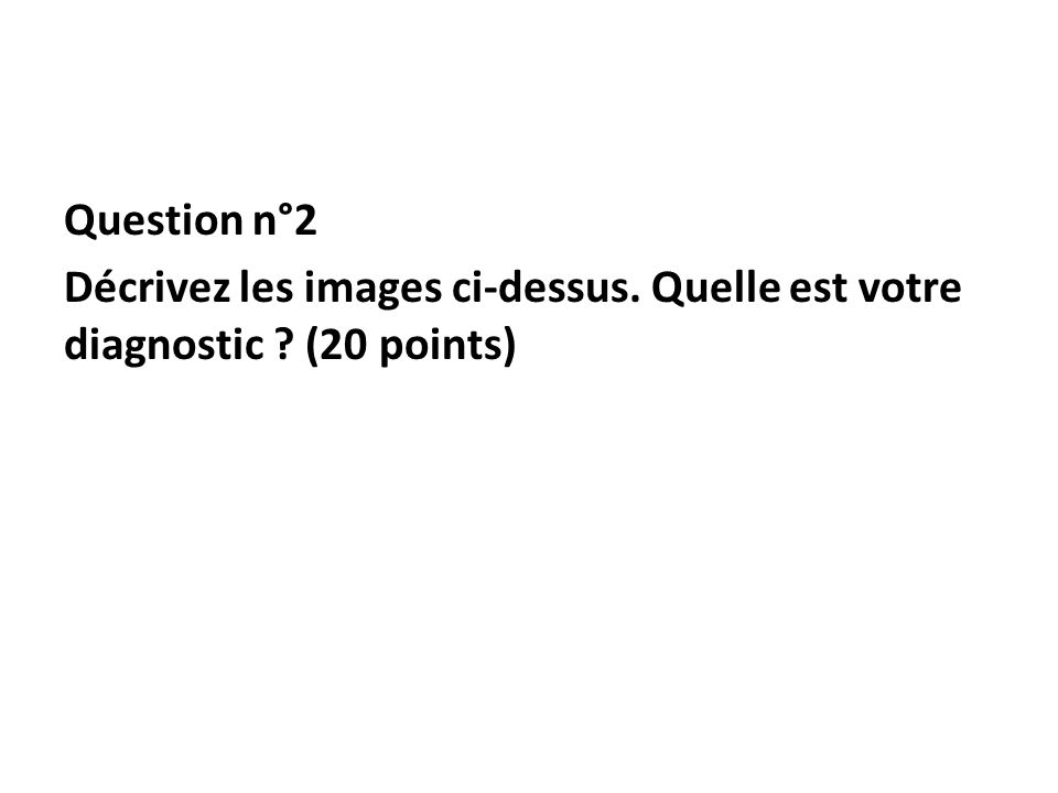 Question n°2 Décrivez les images ci-dessus. Quelle est votre diagnostic ? (20 points)