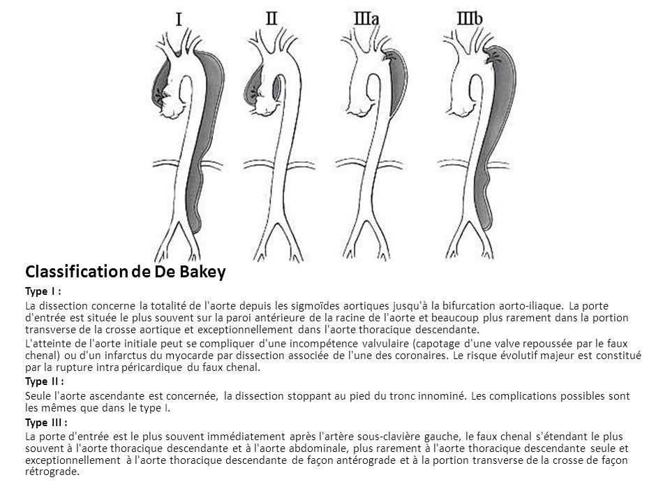 Classification de De Bakey Type I : La dissection concerne la totalité de l'aorte depuis les sigmoïdes aortiques jusqu'à la bifurcation aorto-iliaque.