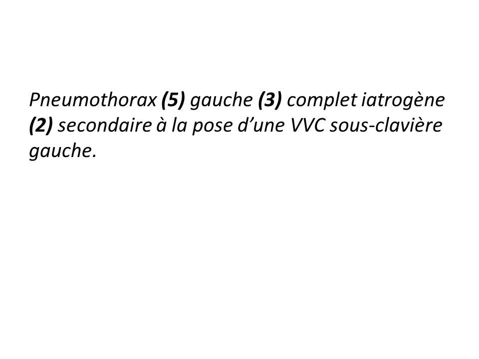 Pneumothorax (5) gauche (3) complet iatrogène (2) secondaire à la pose dune VVC sous-clavière gauche.