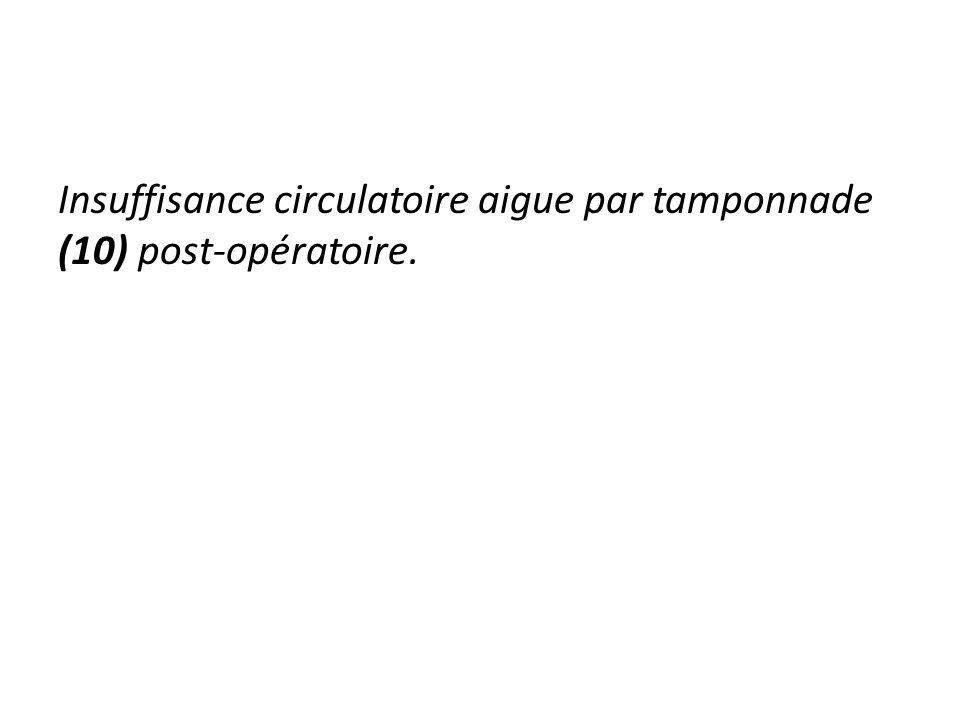 Insuffisance circulatoire aigue par tamponnade (10) post-opératoire.