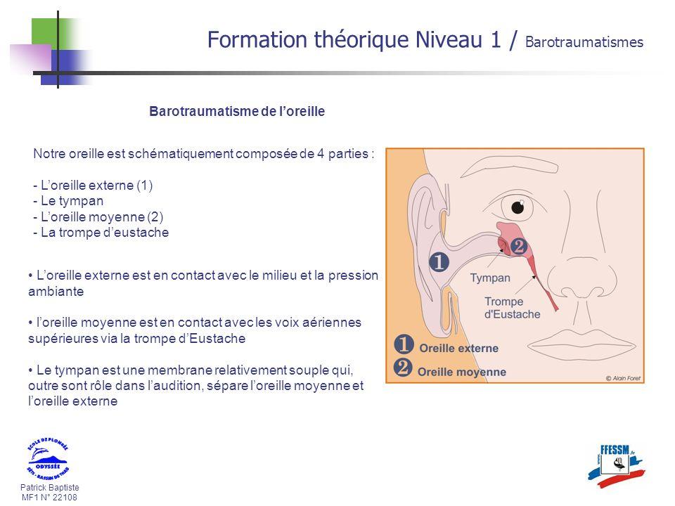 Patrick Baptiste MF1 N° 22108 Barotraumatisme de loreille Notre oreille est schématiquement composée de 4 parties : - Loreille externe (1) - Le tympan