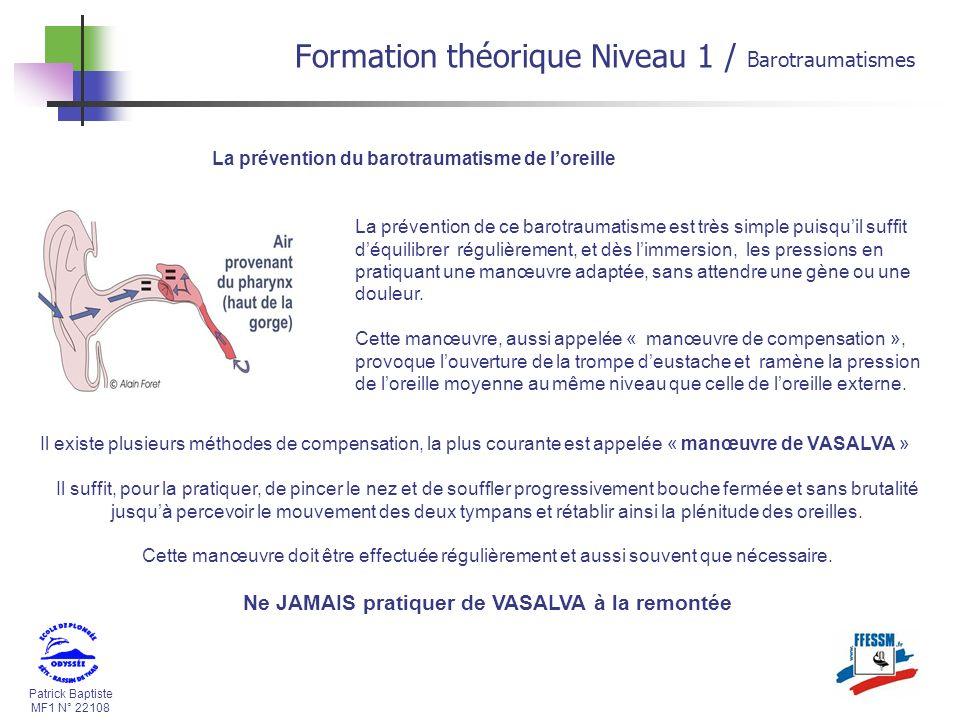 Patrick Baptiste MF1 N° 22108 La prévention du barotraumatisme de loreille La prévention de ce barotraumatisme est très simple puisquil suffit déquili