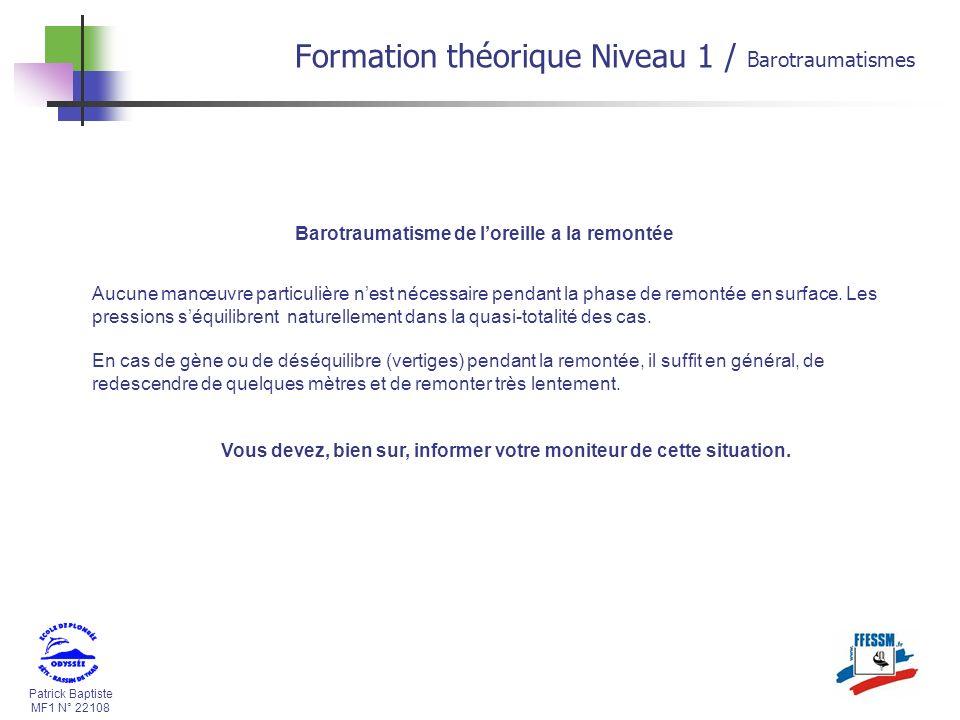 Patrick Baptiste MF1 N° 22108 Barotraumatisme de loreille a la remontée Aucune manœuvre particulière nest nécessaire pendant la phase de remontée en s