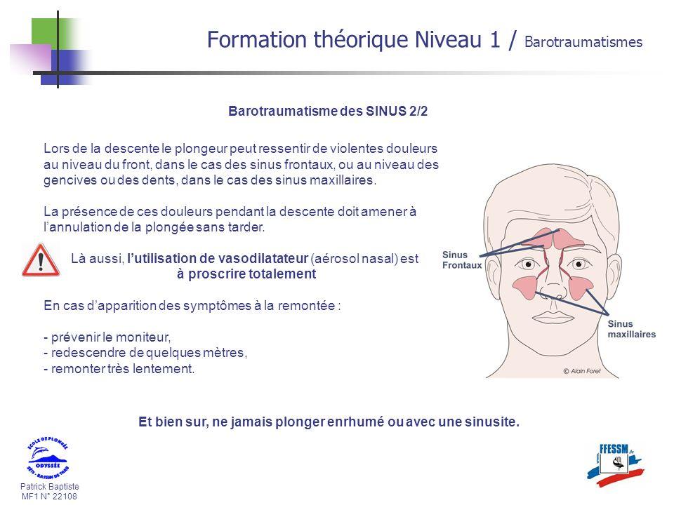 Patrick Baptiste MF1 N° 22108 Barotraumatisme des SINUS 2/2 Lors de la descente le plongeur peut ressentir de violentes douleurs au niveau du front, d