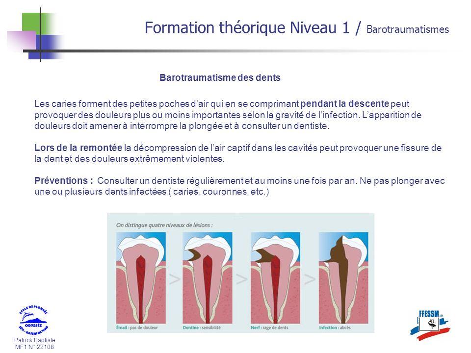 Patrick Baptiste MF1 N° 22108 Barotraumatisme des dents Les caries forment des petites poches dair qui en se comprimant pendant la descente peut provo