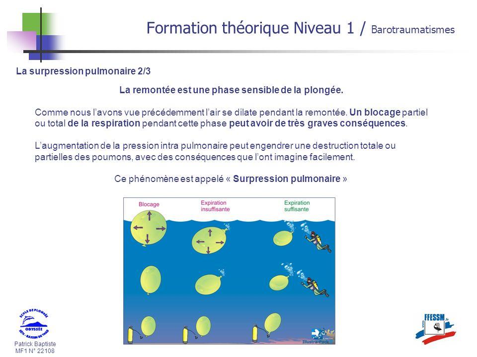 Patrick Baptiste MF1 N° 22108 La surpression pulmonaire 2/3 La remontée est une phase sensible de la plongée. Comme nous lavons vue précédemment lair