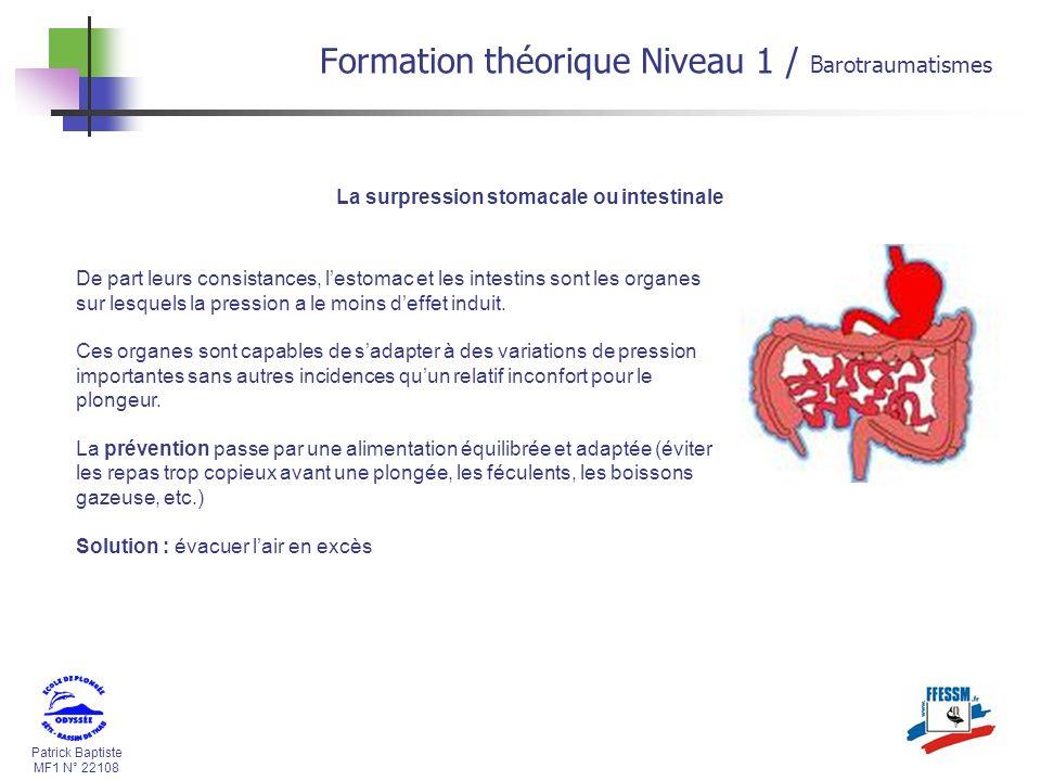 Patrick Baptiste MF1 N° 22108 La surpression stomacale ou intestinale De part leurs consistances, lestomac et les intestins sont les organes sur lesqu