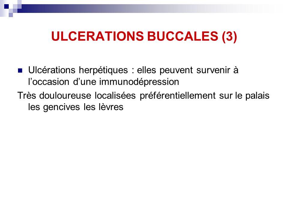 ULCERATIONS BUCCALES (3) Ulcérations herpétiques : elles peuvent survenir à loccasion dune immunodépression Très douloureuse localisées préférentielle