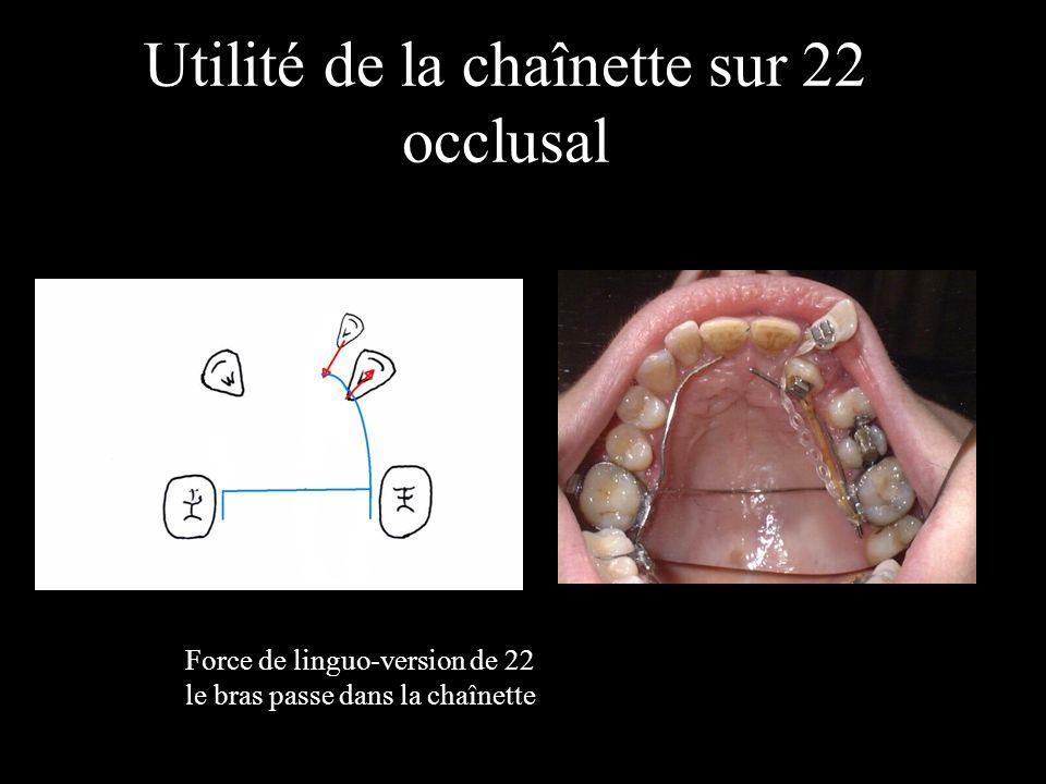 Utilité de la chaînette sur 22 occlusal Force de linguo-version de 22 le bras passe dans la chaînette