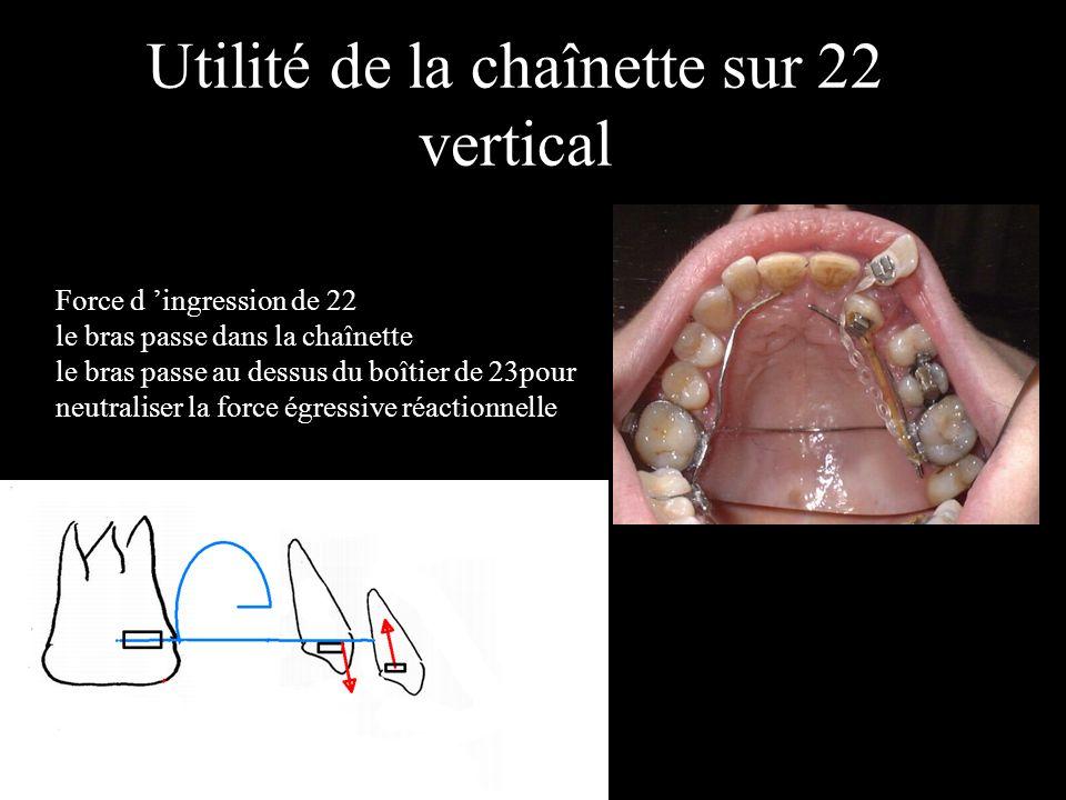 Utilité de la chaînette sur 22 vertical Force de lv de 22 le bras passe dans la chaînette Force d ingression de 22 le bras passe dans la chaînette le