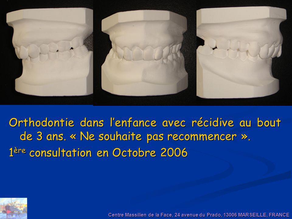 Orthodontie dans lenfance avec récidive au bout de 3 ans. « Ne souhaite pas recommencer ». 1 ère consultation en Octobre 2006 Centre Massilien de la F