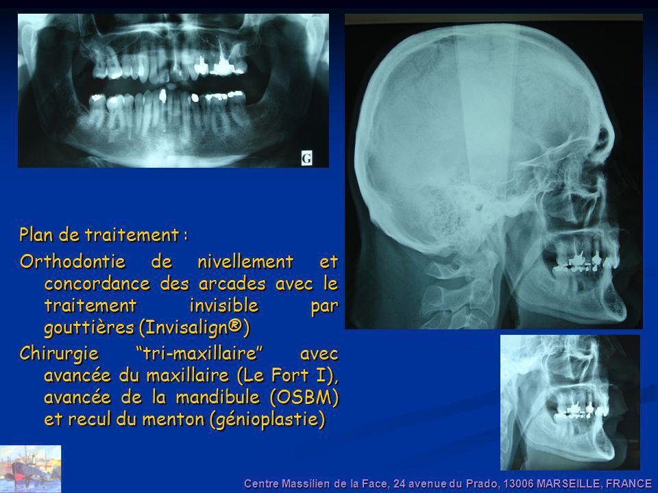 Plan de traitement : Orthodontie de nivellement et concordance des arcades avec le traitement invisible par gouttières (Invisalign®) Chirurgie tri-max