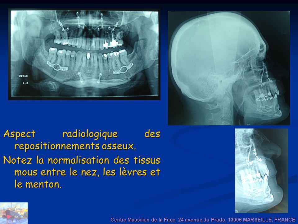 Aspect radiologique des repositionnements osseux. Notez la normalisation des tissus mous entre le nez, les lèvres et le menton. Centre Massilien de la