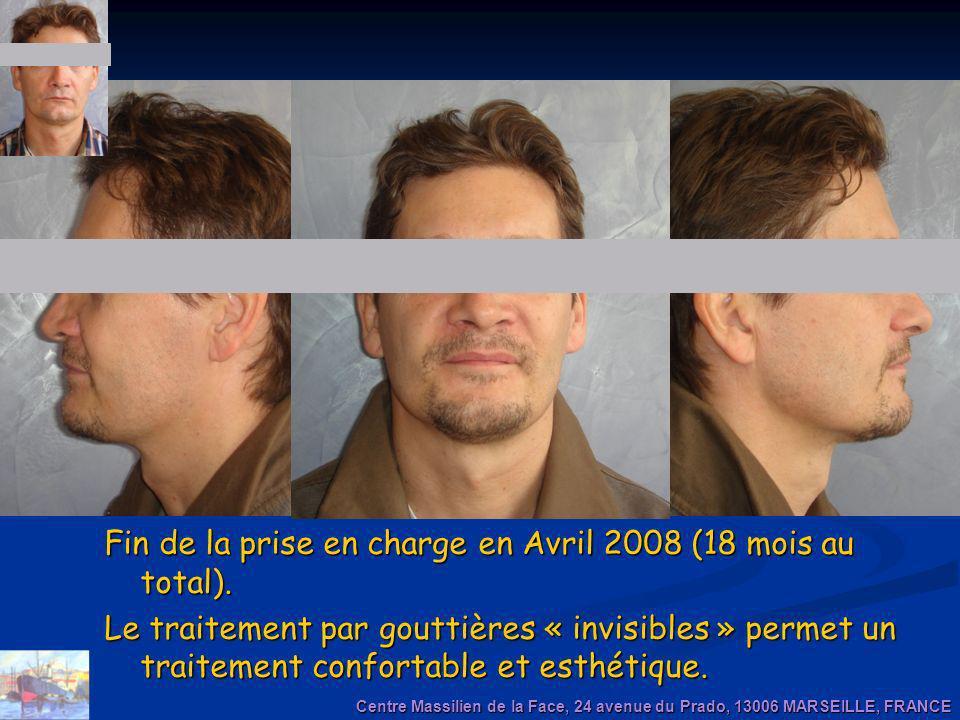 Fin de la prise en charge en Avril 2008 (18 mois au total). Le traitement par gouttières « invisibles » permet un traitement confortable et esthétique