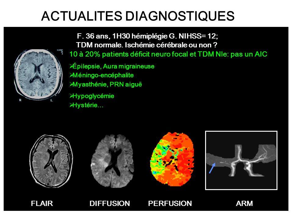 FLAIRDIFFUSIONPERFUSIONARM F. 36 ans, 1H30 hémiplégie G. NIHSS= 12; TDM normale. Ischémie cérébrale ou non ? ACTUALITES DIAGNOSTIQUES 10 à 20% patient