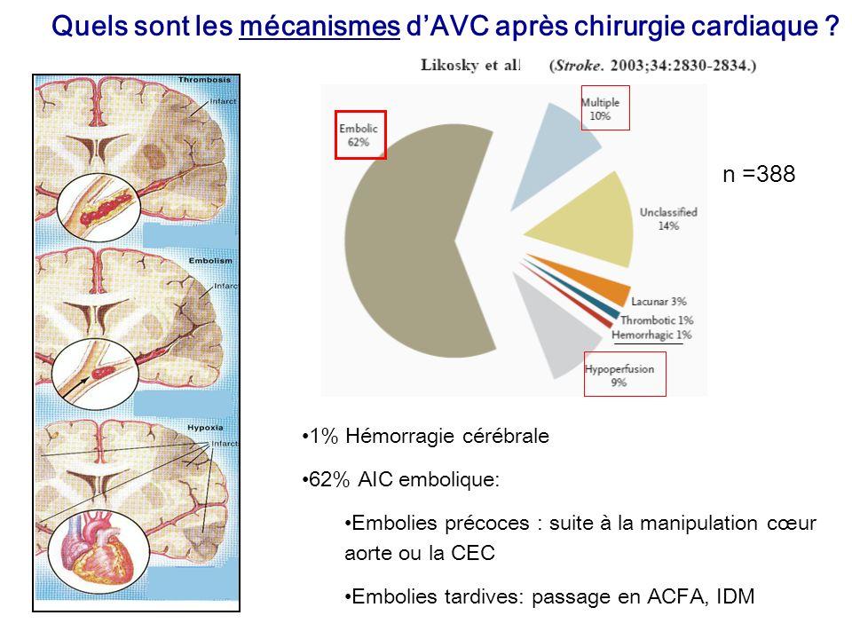 Quels sont les mécanismes dAVC après chirurgie cardiaque ? 1% Hémorragie cérébrale 62% AIC embolique: Embolies précoces : suite à la manipulation cœur