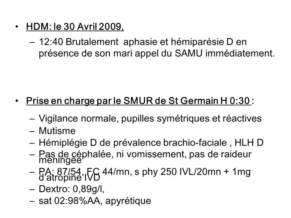 HDM: le 30 Avril 2009, –12:40 Brutalement aphasie et hémiparésie D en présence de son mari appel du SAMU immédiatement. Prise en charge par le SMUR de
