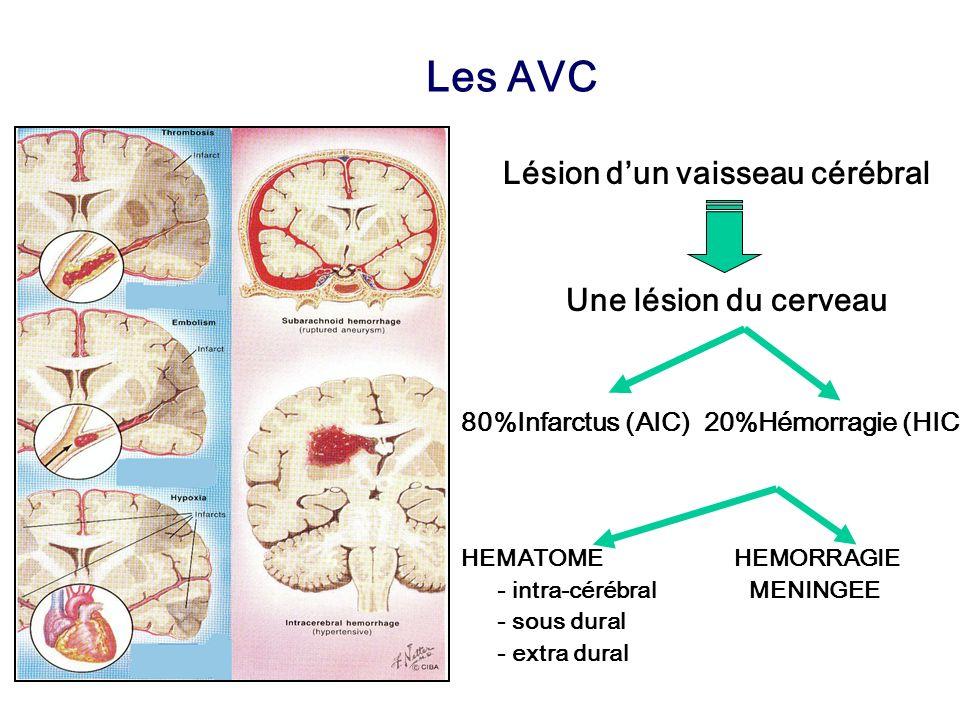 Infarctus cérébral: Les 5 étages étiologiques 2.Aorte (Crosse aorte) 1.Cœur (20%) 5.Petites artères perforantes intracérébrales = SVD (20%) 3.Artères cervicales carotides, vertébrales 4.Artères intracrâniennes artère basilaire, ACM –Hétérogénéité étiologique (> 150 causes) –Athérosclérose : 30% –Inexpliqué : 20% + le sang 3 causes expliquent 2/3 des AVC SVD Athérothrombose Cardiopathies