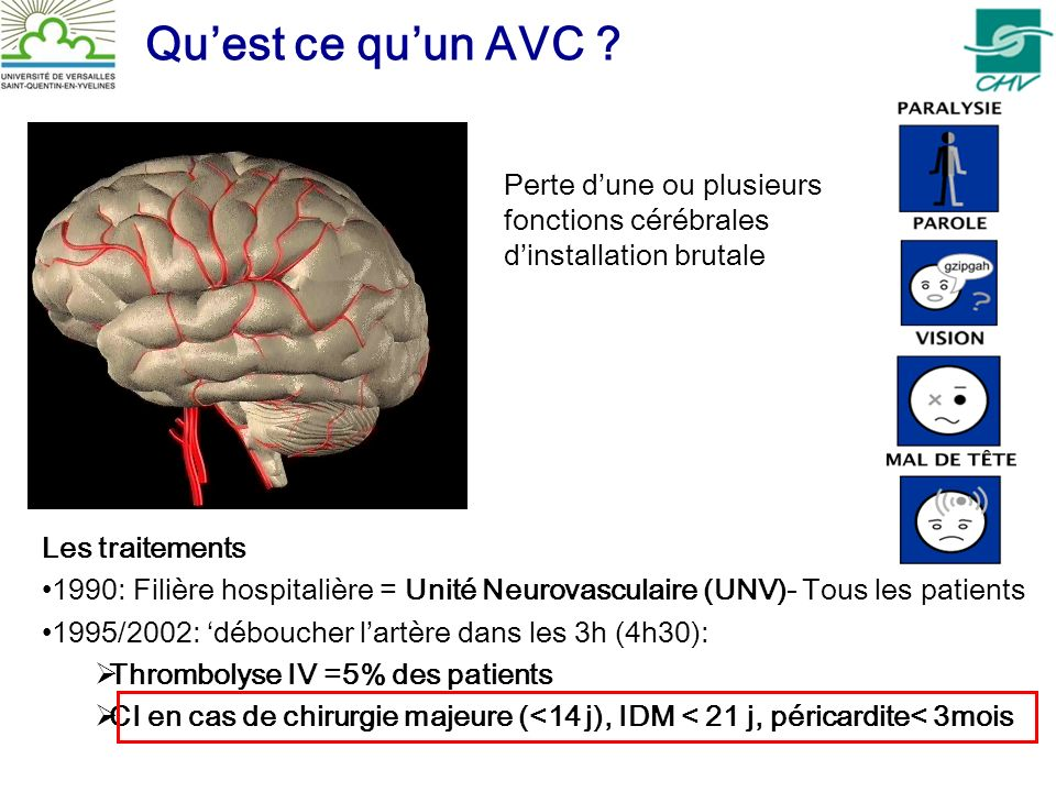 Quest ce quun AVC ? Les traitements 1990: Filière hospitalière = Unité Neurovasculaire (UNV)- Tous les patients 1995/2002: déboucher lartère dans les