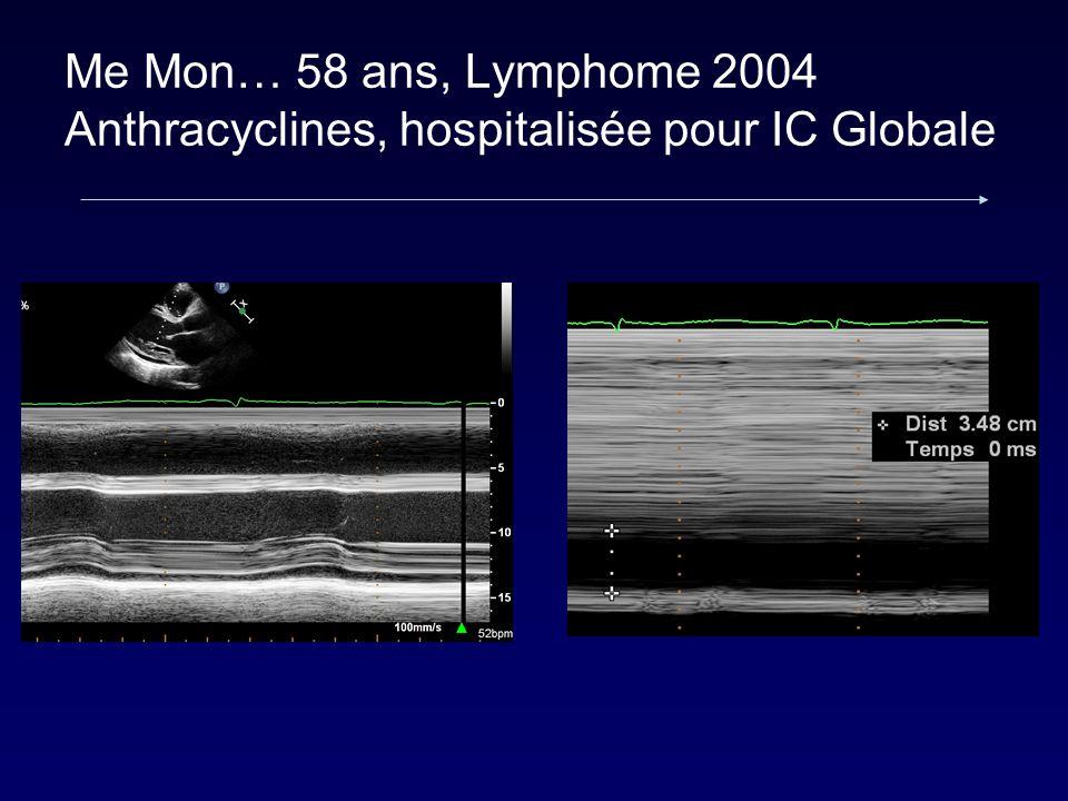 Me Mon… 58 ans, Lymphome 2004 Anthracyclines, hospitalisée pour IC Globale