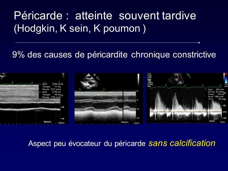 Péricarde : atteinte souvent tardive (Hodgkin, K sein, K poumon ) 9% des causes de péricardite chronique constrictive Aspect peu évocateur du péricard