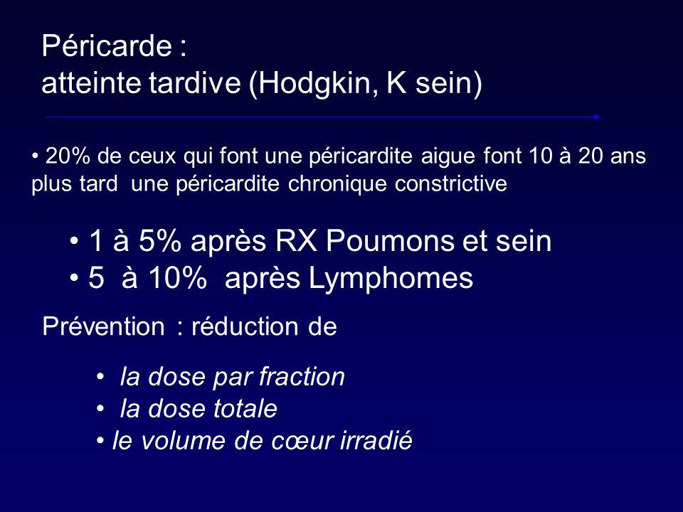 Péricarde : atteinte tardive (Hodgkin, K sein) 20% de ceux qui font une péricardite aigue font 10 à 20 ans plus tard une péricardite chronique constri