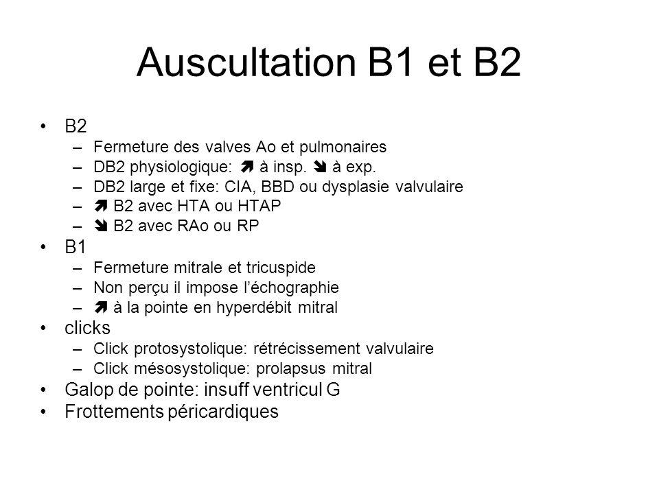 Auscultation B1 et B2 B2 –Fermeture des valves Ao et pulmonaires –DB2 physiologique: à insp. à exp. –DB2 large et fixe: CIA, BBD ou dysplasie valvulai