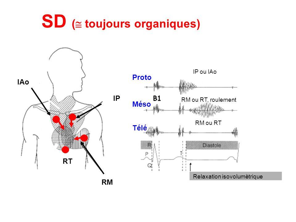 RM RT IAo IP SD ( toujours organiques) IP ou IAo RM ou RT, roulement Proto Méso Télé Relaxation isovolumètrique RM ou RT