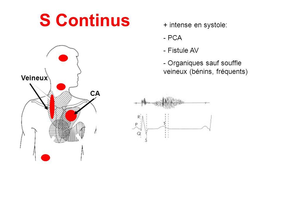 Veineux S Continus CA + intense en systole: - PCA - Fistule AV - Organiques sauf souffle veineux (bénins, fréquents)