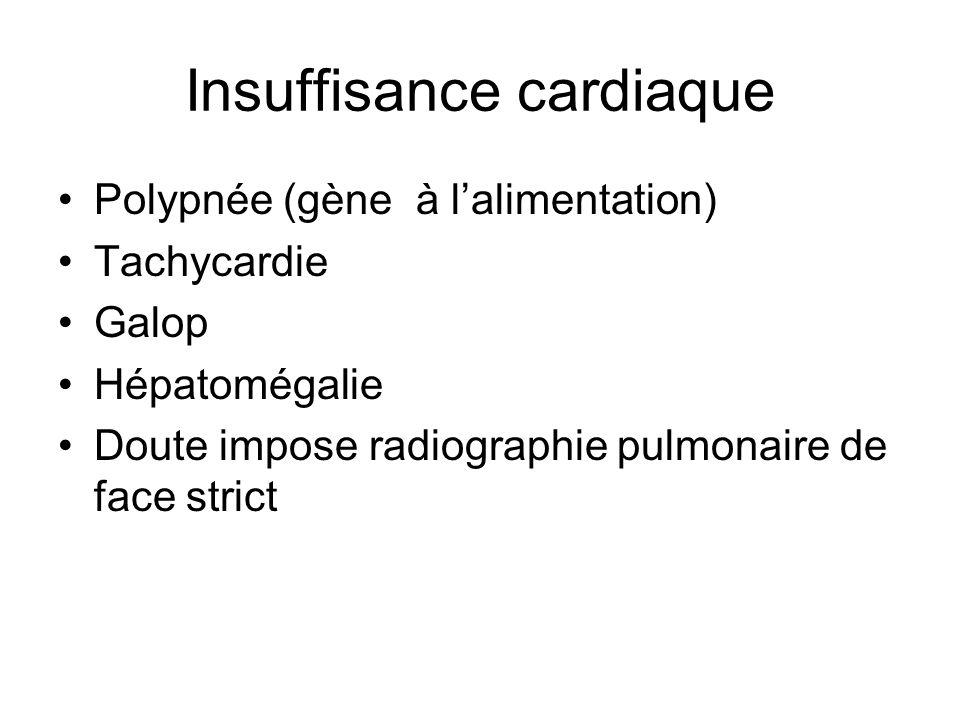 Insuffisance cardiaque Polypnée (gène à lalimentation) Tachycardie Galop Hépatomégalie Doute impose radiographie pulmonaire de face strict