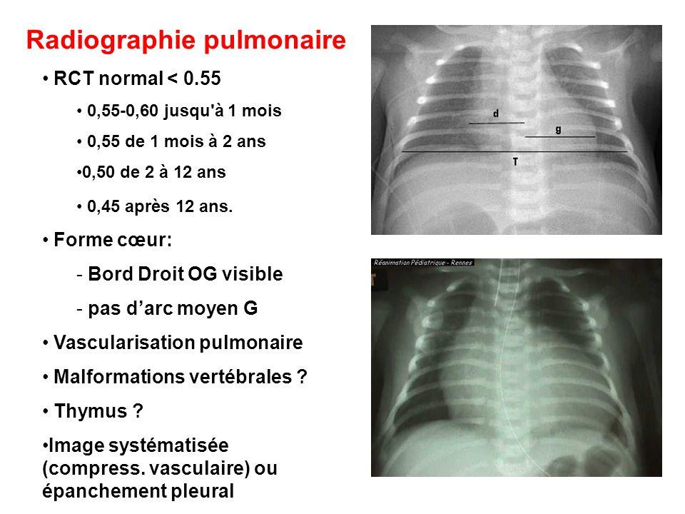 RCT normal < 0.55 0,55-0,60 jusqu'à 1 mois 0,55 de 1 mois à 2 ans 0,50 de 2 à 12 ans 0,45 après 12 ans. Forme cœur: - Bord Droit OG visible - pas darc