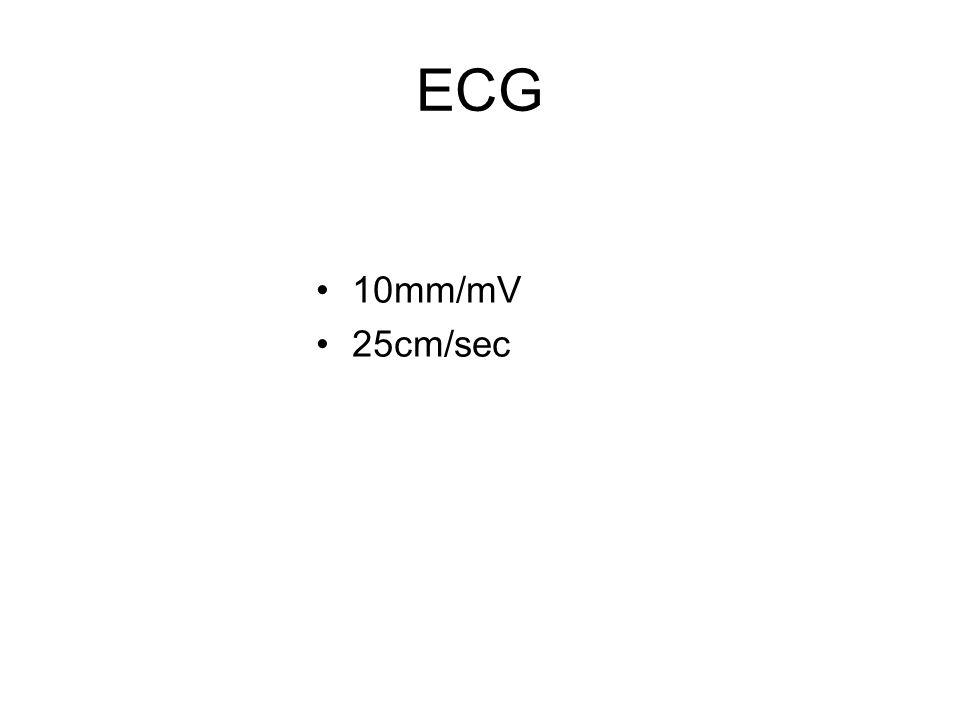 ECG 10mm/mV 25cm/sec