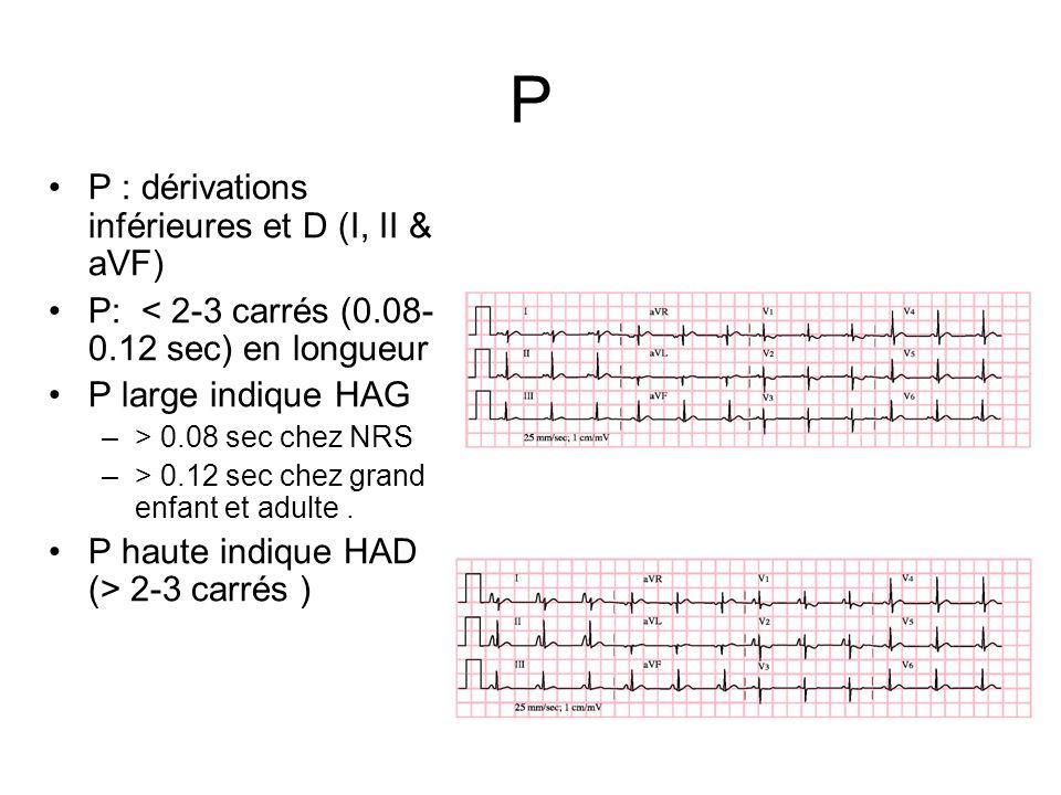 P P : dérivations inférieures et D (I, II & aVF) P: < 2-3 carrés (0.08- 0.12 sec) en longueur P large indique HAG –> 0.08 sec chez NRS –> 0.12 sec che