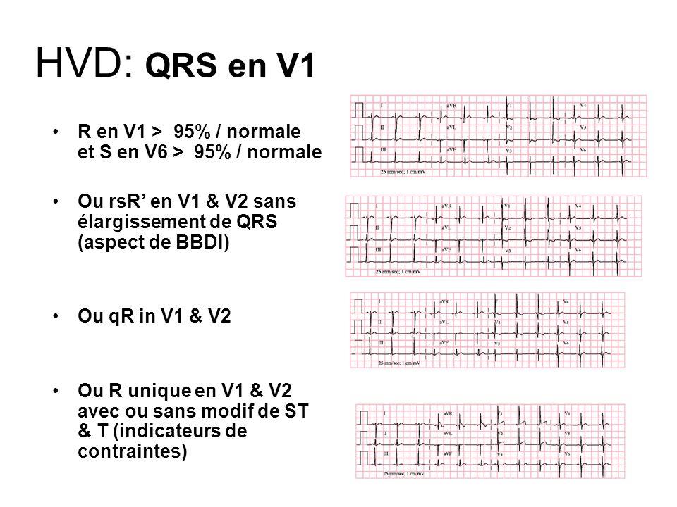 HVD: QRS en V1 R en V1 > 95% / normale et S en V6 > 95% / normale Ou rsR en V1 & V2 sans élargissement de QRS (aspect de BBDI) Ou qR in V1 & V2 Ou R u