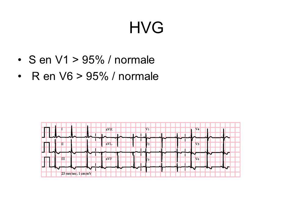 HVG S en V1 > 95% / normale R en V6 > 95% / normale