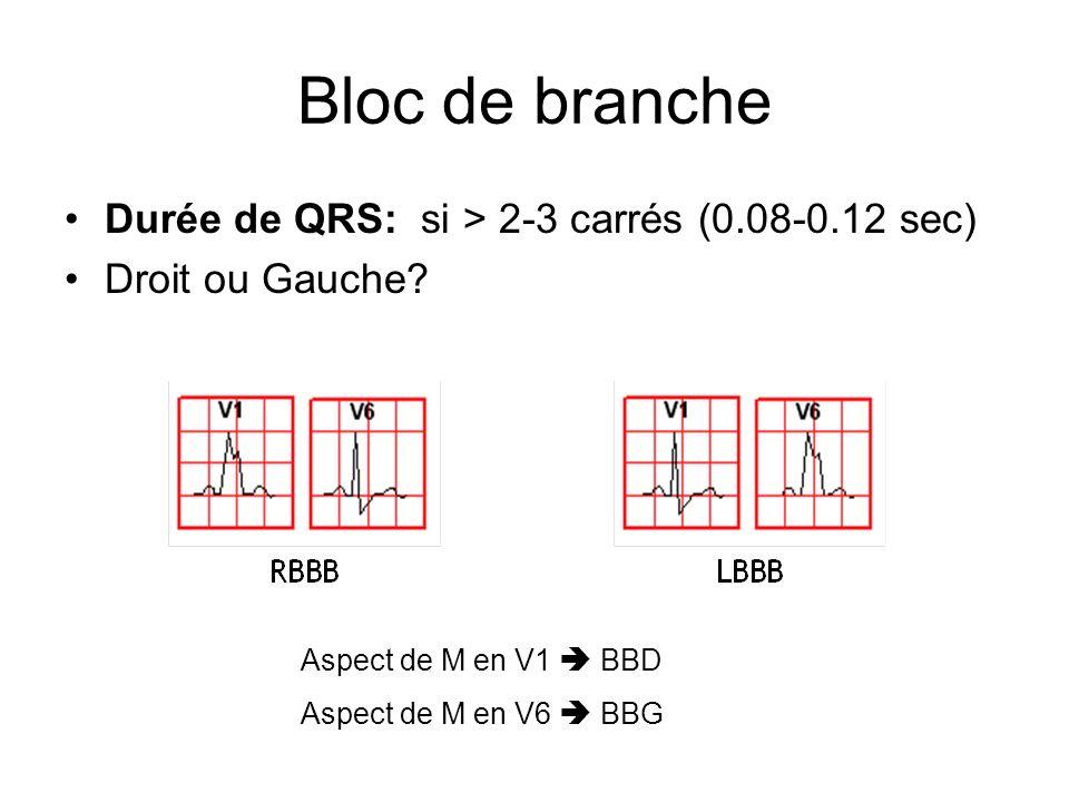 Bloc de branche Durée de QRS: si > 2-3 carrés (0.08-0.12 sec) Droit ou Gauche? Aspect de M en V1 BBD Aspect de M en V6 BBG