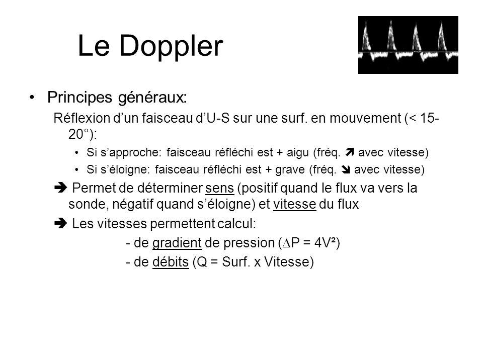 Le Doppler Principes généraux: Réflexion dun faisceau dU-S sur une surf. en mouvement (< 15- 20°): Si sapproche: faisceau réfléchi est + aigu (fréq. a