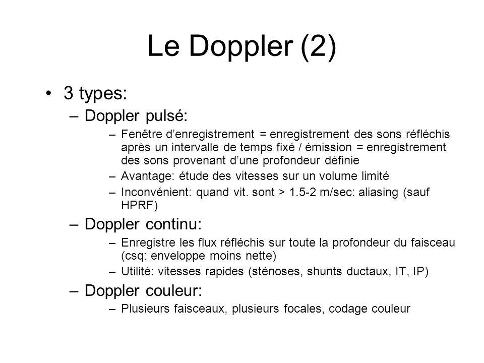Le Doppler (2) 3 types: –Doppler pulsé: –Fenêtre denregistrement = enregistrement des sons réfléchis après un intervalle de temps fixé / émission = en