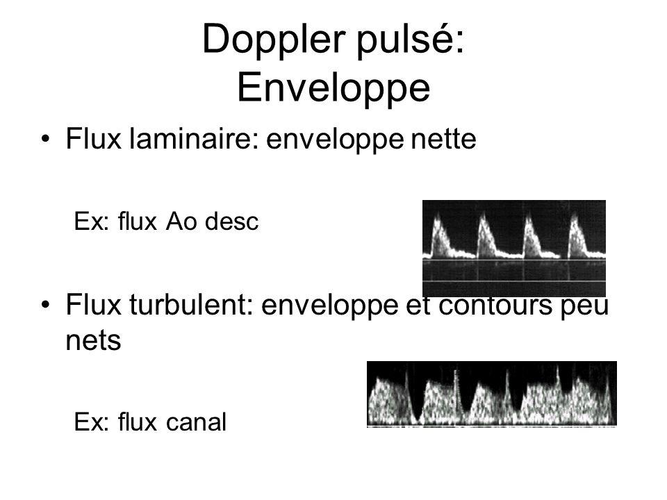 Doppler pulsé: Enveloppe Flux laminaire: enveloppe nette Ex: flux Ao desc Flux turbulent: enveloppe et contours peu nets Ex: flux canal