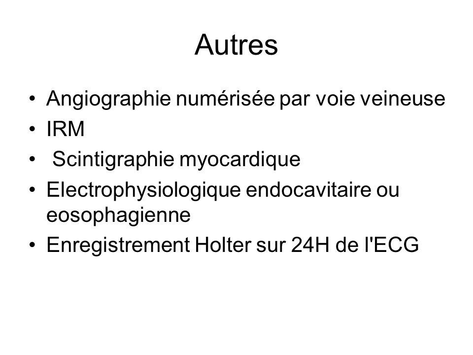 Autres Angiographie numérisée par voie veineuse IRM Scintigraphie myocardique Electrophysiologique endocavitaire ou eosophagienne Enregistrement Holte