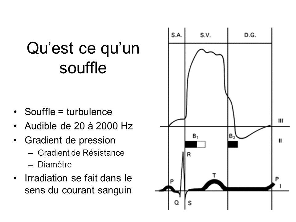 Quest ce quun souffle Souffle = turbulence Audible de 20 à 2000 Hz Gradient de pression –Gradient de Résistance –Diamètre Irradiation se fait dans le