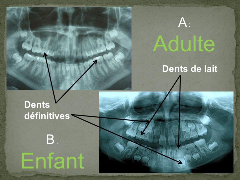 A : Adulte B : Enfant Dents définitives Dents de lait